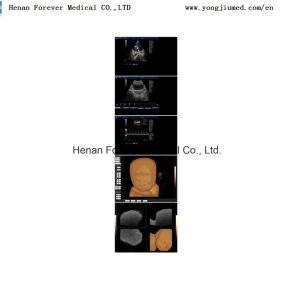 Color Doppler Ultrasound Scanner Similar Mindray Yj-U60plus pictures & photos