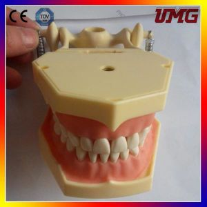 Hot Sale High Quality Dental Model for Periodontal Disease pictures & photos