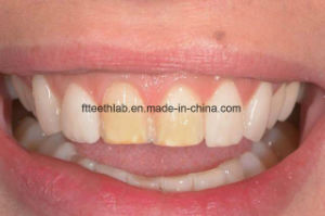 Dental Porcelain Veneers Made in China Dental Lab pictures & photos