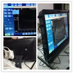 Touchscreen Portable Color Doppler Ultrasound pictures & photos
