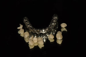 Full Arch Zirconium Crowns Over Malo Bridge Metal Structure pictures & photos