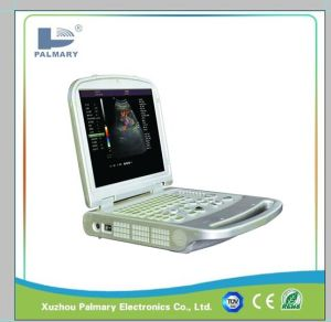Portable Color Doppler and Ultrasound Scanner Doppler pictures & photos