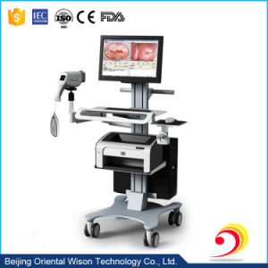 Best Selling High Quality Medical Digital Colposcope for Vagina pictures & photos