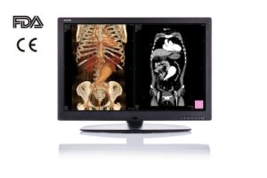 """30"""" Colour Monitor for Medical Equipment CE FDA pictures & photos"""