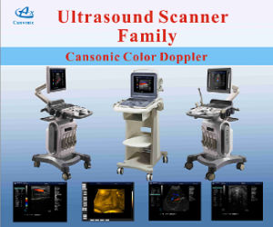 Trolley Cansonic Color Ultrasonic Dignostic system pictures & photos