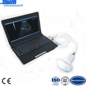 2 USB Port Mini Laptop Portable Ultrasound Scanner pictures & photos