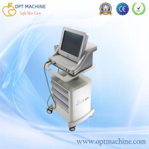 Hifu Korea/High Intensity Focused Ultrasound pictures & photos