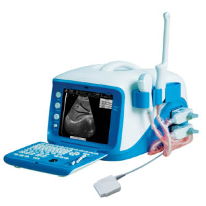 Wt-6000 Full Digital 3D/4D Portable Color Doppler Ultrasound Scanner pictures & photos