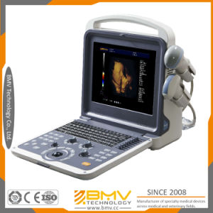 Portable Diagnosis System 4D Color Doppler Ultrasound Scanner Bcu40 pictures & photos