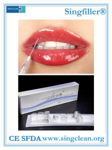 Singderm Lidocaine Hyaluronic Acid Dermal Filler for Full Lip pictures & photos