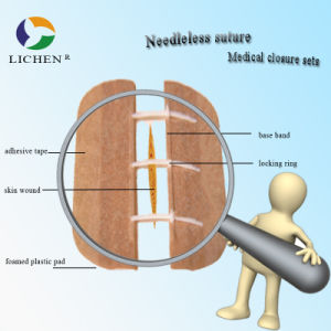 Suture Materials for Surgery Wound