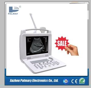 Real-Time Display CE Marked Full Digital Portable Ultrasound pictures & photos