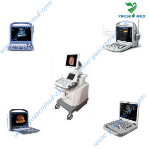 Medical Hospital 2D/3D/4D Trolley and Portable Ultrasound pictures & photos