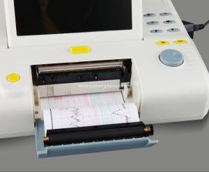 8.4 Inch Fetal Monitor Ultrasonic Transducer Pregnant Fetal Digital Monitor pictures & photos