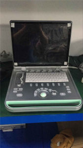 Medical Factory Laptop PC Based B/W Scanner Ultrasound Machine pictures & photos
