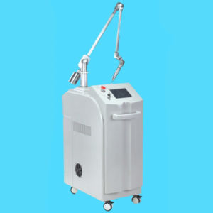 Q-Switching ND YAG Laser Machine Treatment for Tattoo Freckle Removal