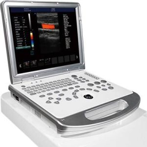 CE Approved Portable Color Ultrasound Scanner pictures & photos