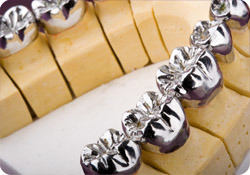 Customized Titanium Metal Crown with Allergy Person pictures & photos