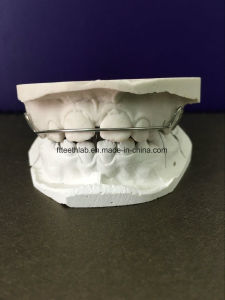 Orthodontic Habit Breaker for Children Made in China Dental Lab pictures & photos