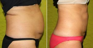 Coolsculpting Cryolipolysis Ice Freezing Fat Reduce Body Slimming Coolplas Machine pictures & photos
