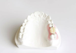 Valplast Denture for Clinic From Chinese Dental Lab pictures & photos