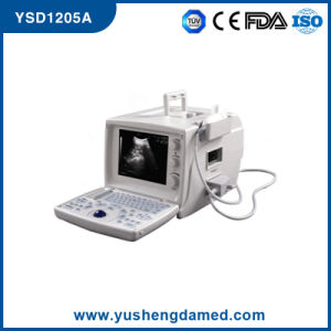 Full Digital Portable Ultrasound System CE ISO Approved Ysd1205 pictures & photos