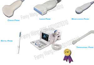 10-Inch Portable Ultrasound Scanner with All Probe (RUS-6000D) -Fanny pictures & photos