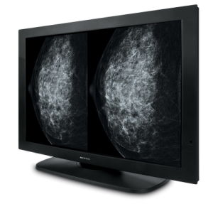 (JUSHA-M101) 10m Monochrome Medical Diagnostic Displays, High Luminance, Mammography pictures & photos