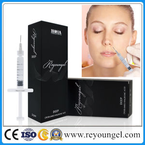 Reyoungel Injectable Dermal Filler Lip Augmentation pictures & photos