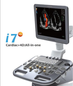 Abdominal Ultrasound Sonar Machine, Ultrasound Abdomen China Guangzhou pictures & photos