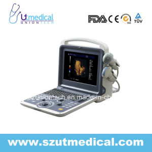 Ut-K6 Portable 4D Color Doppler Ultrasound Diagnostic System