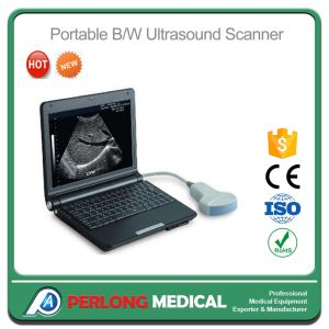 Medical Equipment Laptop Full Digital Portable Ultrasound Scanner Machine pictures & photos