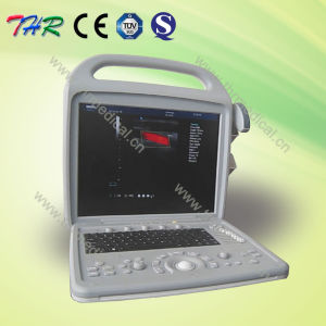 Portable Color Doppler Ultrasound Scanner (THR-CD580) pictures & photos