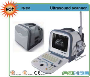 Fn551 CE Approved Full Digital B Mode Portable Pregnancy Scanner Ultrasound pictures & photos