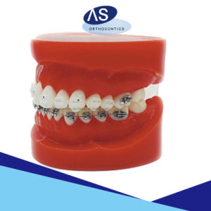 Orthodontic Ceramic Brackets - Mesh Base Transparent Ceramic Brackets pictures & photos