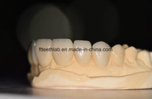 Aesthetic E. Max Veneers with Perfect Fitting pictures & photos