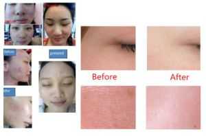Skin Rejuvenation Almighty Oxygen Jet with Factory Price pictures & photos