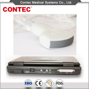 Hopital Medical Equipment Notebook Diagnostic Ultrasound System pictures & photos