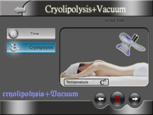 Lipo Laser Cellutile Removal Ultrasound Ultrasonic Cavitation RF Body Shaping Zeltiq Cryolipolysis Cryo pictures & photos