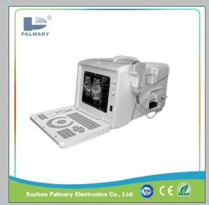 Ultrasound Scanner for Human Pregnancy Use