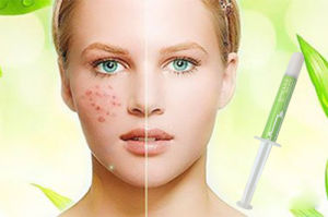 Professional Medical Cosmetic Acne Treatment Face Cream Solution pictures & photos