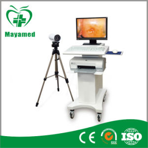 My-F004 Hospital Electronic Handheld Digital Video Colposcope pictures & photos