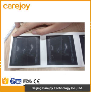 Factory Price 10 Inch Laptop Ultrasound Scanner with Linear Probe (RUS-9000F) -Fanny pictures & photos