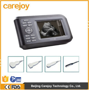 Cheap Price Handheld Portable Ultrasound Scanner with 5.5 Inches TFT LCD Display-Candice pictures & photos