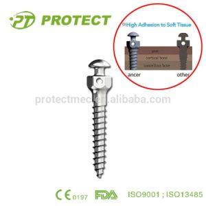Protect Titanium Dental Implants Mini Screws pictures & photos