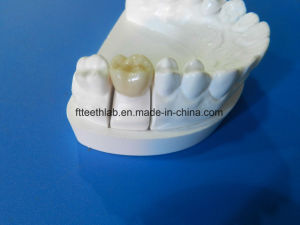 Full Contour Zirconia Crown From China Dental Lab pictures & photos