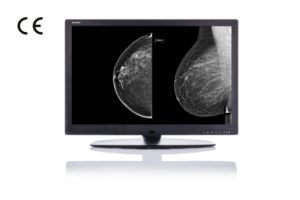 (JUSHA-M101) 10m Monochrome Medical Monitor, Mammography, Radiology pictures & photos