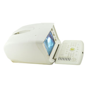 Multi Frequency Portable Ultrasound Scanner Machine Convex, Linear, Micro-Convex, Transvaginal, Rectal Probe Optional-Fanny pictures & photos