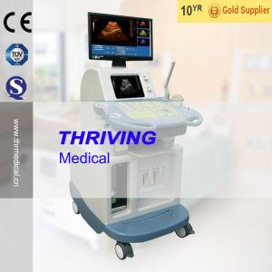 Digital Ultrasound Scanner (THR-US8800) pictures & photos