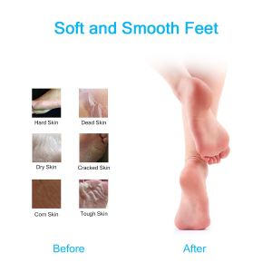 Personal Care Pedicure Tools Electric Foot Callus Remover pictures & photos